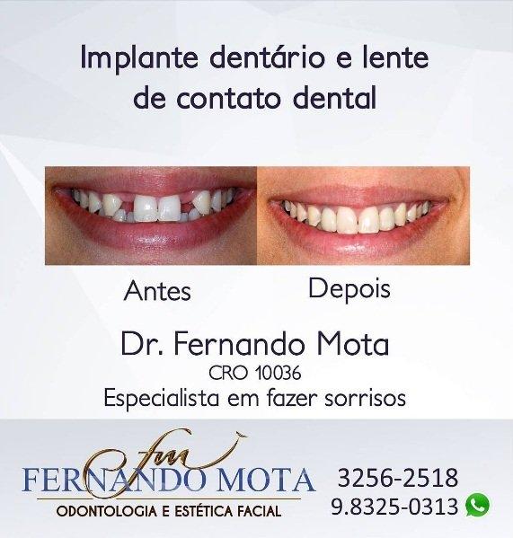 implante-dentario-em-goiania