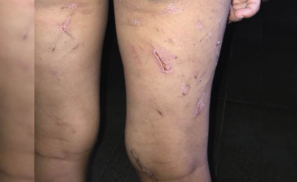 Criança era vítima de tortura, surra com fios e castigos em Niquelândia | Foto: Divulgação/ Polícia Civil