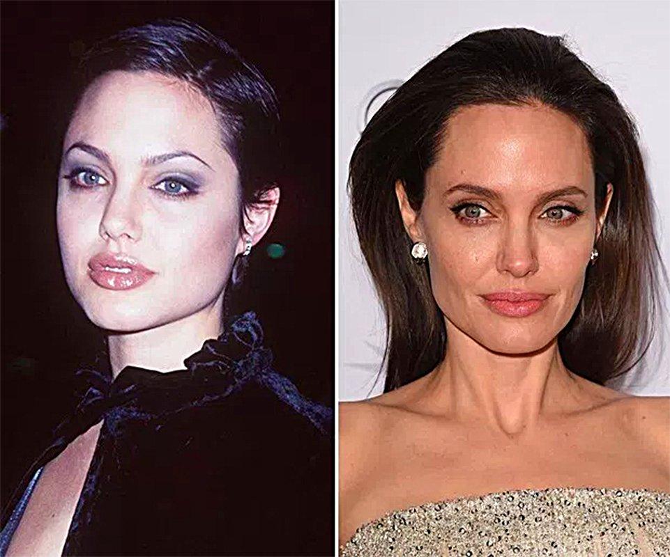 Pretende fazer uma bichectomia em Goiânia? Saiba tudo sobre a cirurgia pela qual a atriz Angelina Jolie já passou | Foto: Reprodução