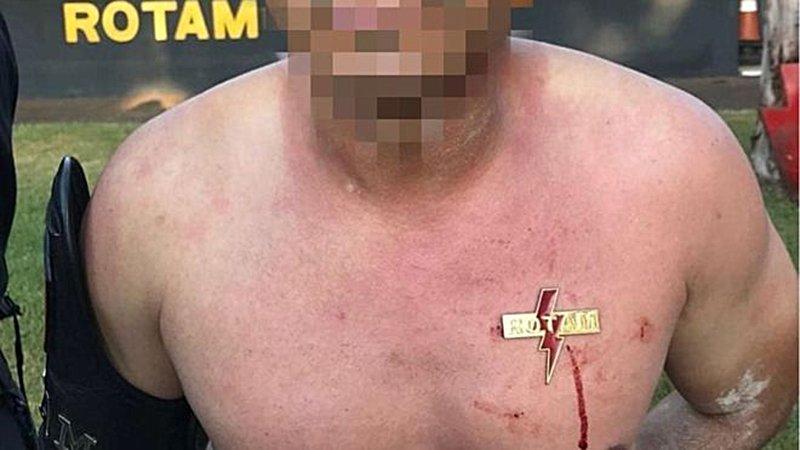 BBC repercute aluno de curso da Rotam que teve brasão cravado no peito | Foto: Reprodução/BBC