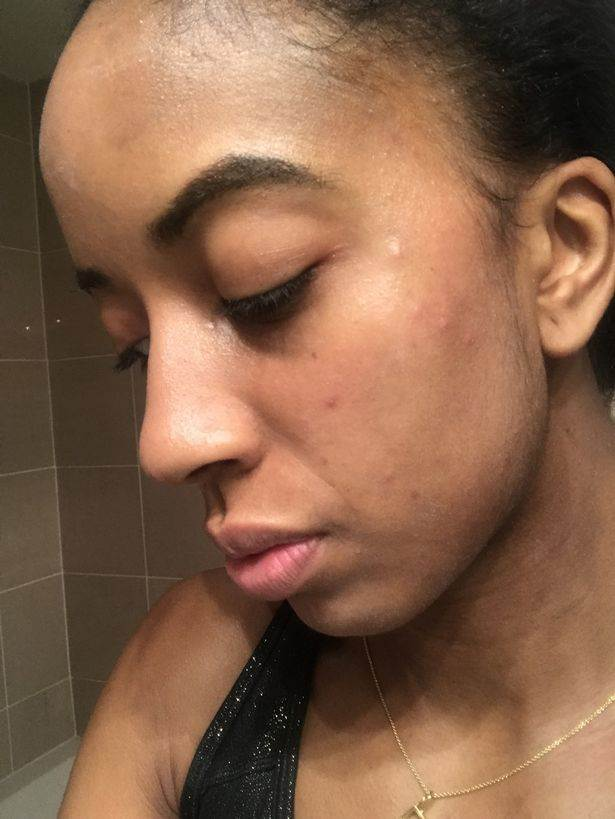 Paige relatou que a pele foi a mais afetada. Surgiram olheiras, ela também sentiu naúseas | Foto: Divulgação