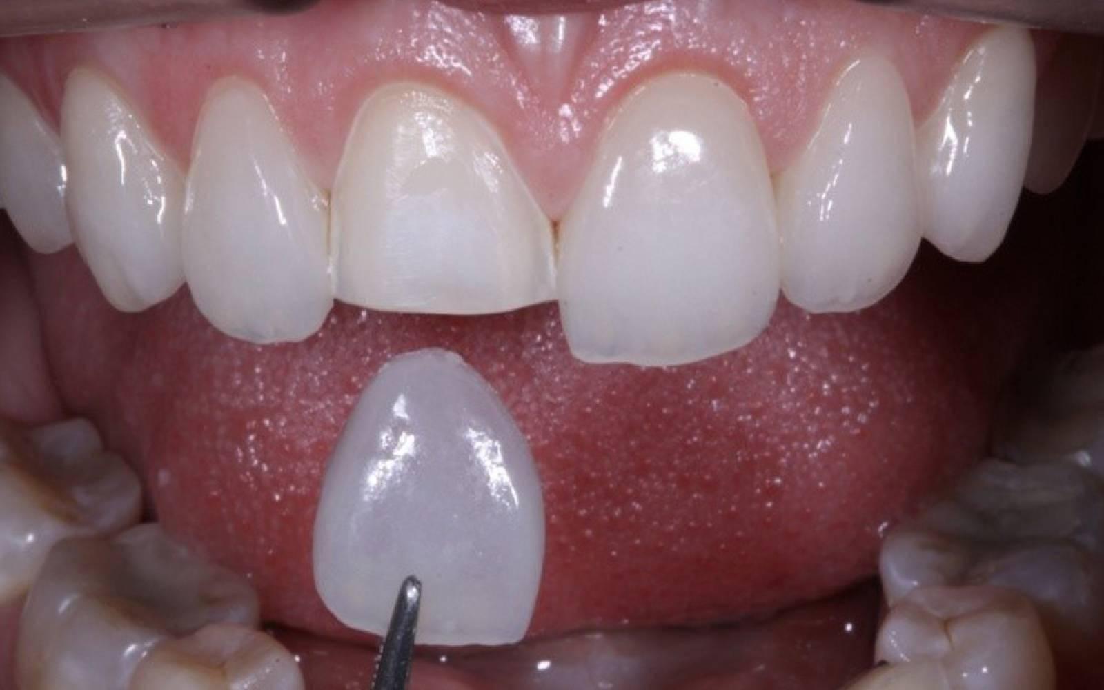 É o dentista quem vai decidir se será necessário ou não o desgaste dos dentes para colocar as facetas dentárias em Goiânia | Foto: Reprodução