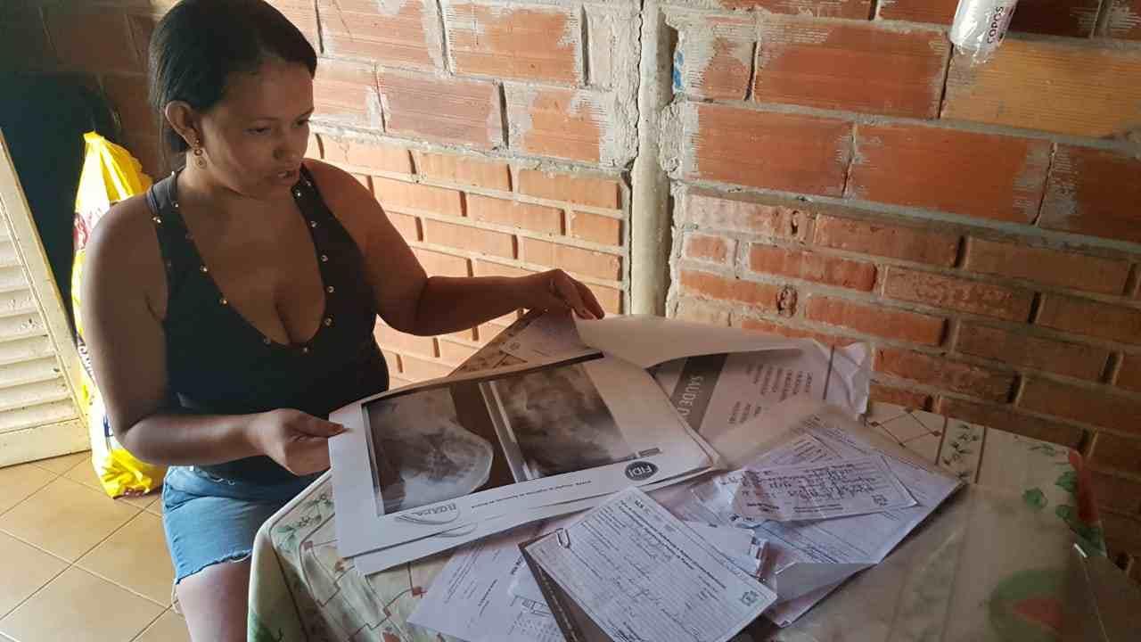 Gabriel de Almeida, 18, enfrenta uma grave distorção na coluna há 7 anos enquanto o SUS posterga sua cirurgia. Reportagem foi atrás da Secretaria de Saúde de Aparecida | Foto: Folha Z