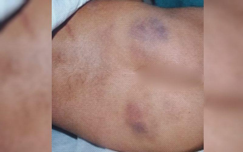 Laudo do IML aponta hematomas nas costas e nas pernas da criança | Foto: Divulgação