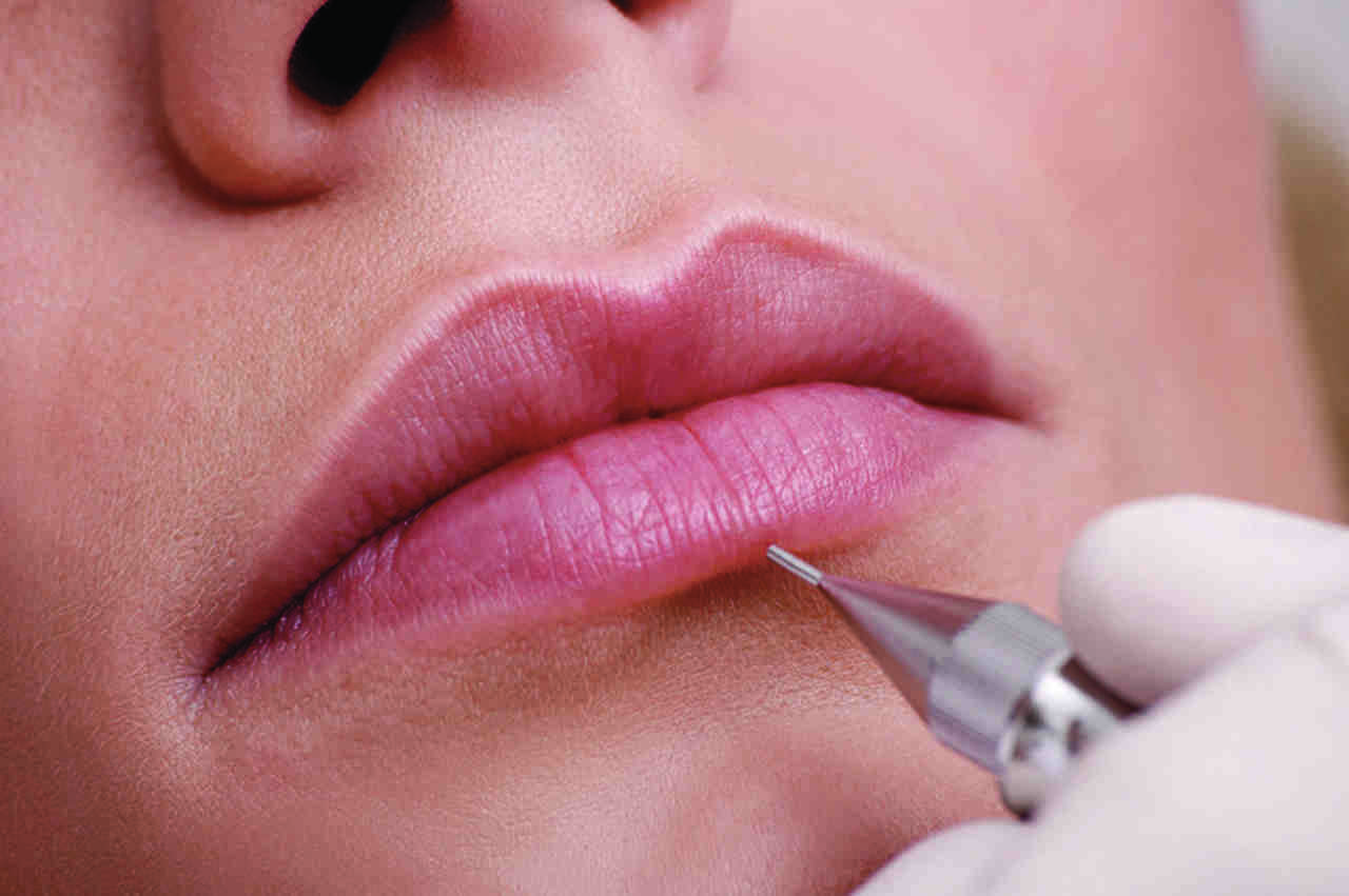 Dermógrafo entra em ação com o contorno dos lábios e depois preenchimento completo, que leva em torno de uma hora