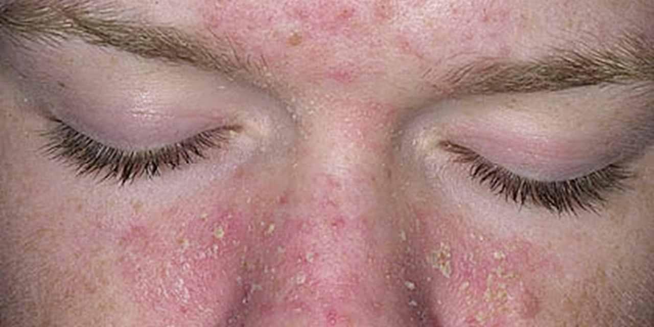 dermatite seborreica doença