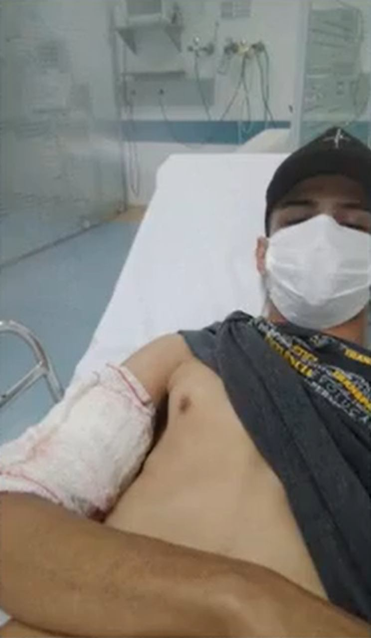 rapaz braço cortado Goiânia